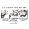 Heart Retainer